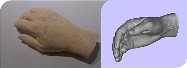 3D digitalizacija in 3D tisk polnila za ročno protezo.